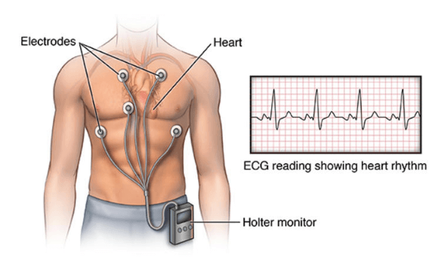 When and Why You Need a Holter Checkup